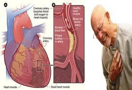 obat tradisional jantung berdebar